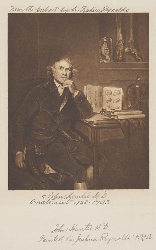 John Hunter, 1728 - 1793. Anatomist