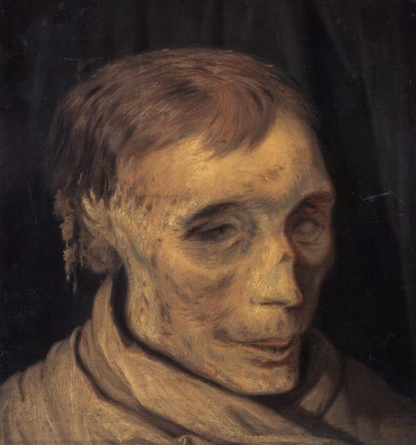 James Hepburn, 4th Earl of Bothwell, c 1535 - 1578. Third husband of Mary, Queen of Scots (Study of mummified head) (1861)
